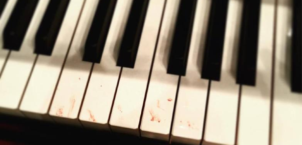 Alice Sara Ott blood stained piano